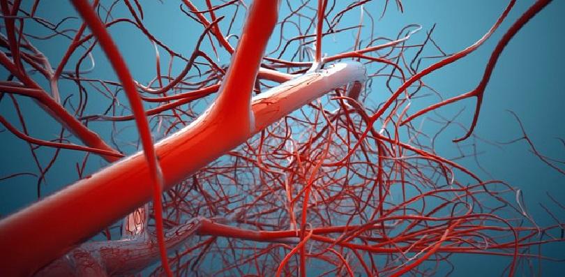 arteritis blood